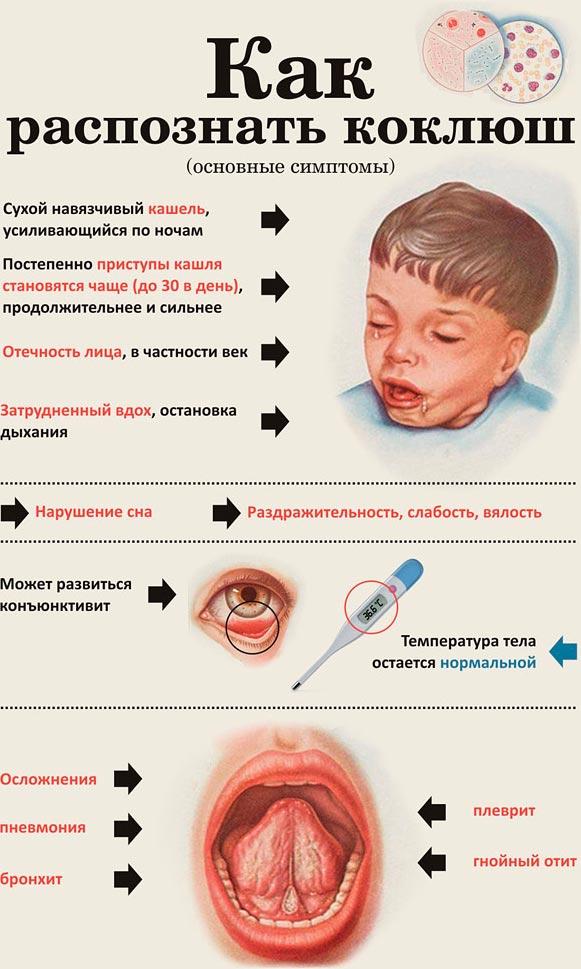 Симптомы коклюша у взрослых и лечение в домашних условиях