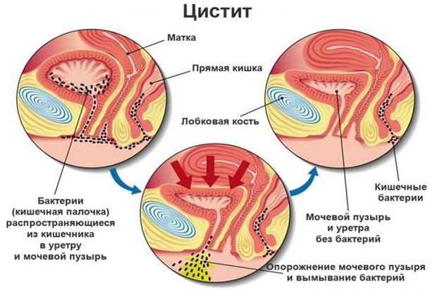 Цистит у женщин и мужчин: симптомы и лечение, таблетки от цистита, признаки, причины