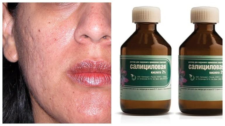Применение салициловой кислоты от прыщей на лице