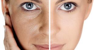 Лицо до и после маски от черных точек