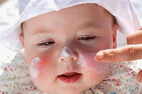 Крапивница у детей симптомы и лечение