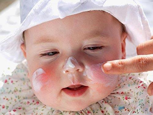 Крапивница у детей - симптомы болезни, профилактика и лечение