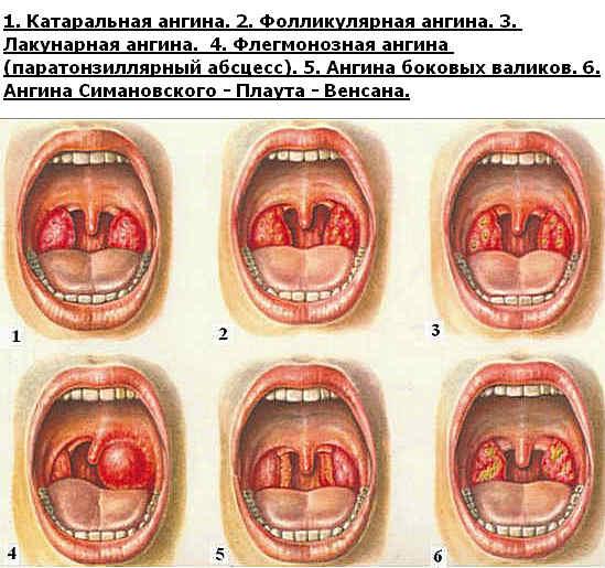 разновидности ангины у детей фото