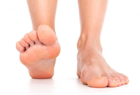 Какие причины приводят к возникновению плоскостопия