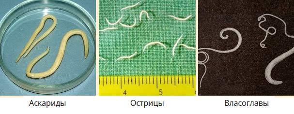 аскариды фото острицы