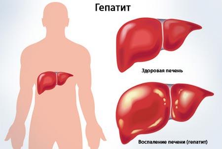 Воспаление печени (гепатит)