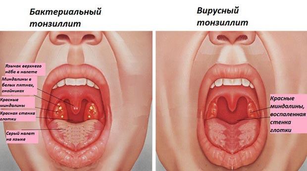 Бактериальный и вирусный тонзиллиты
