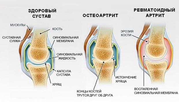 Примеры ревматических заболеваний