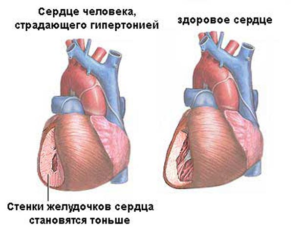 Сердце человека, который страдает гипертонией