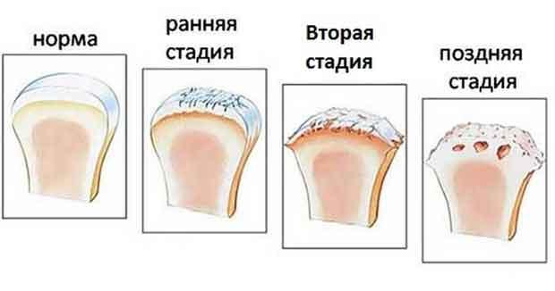 4 стадии артрита