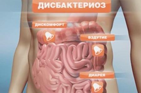 Кандидозный дисбактериоз кишечника