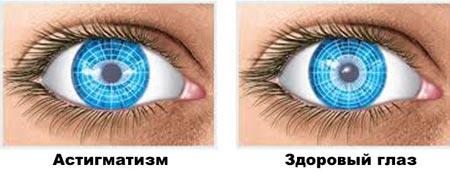 Здоровый глаз и астигматизм