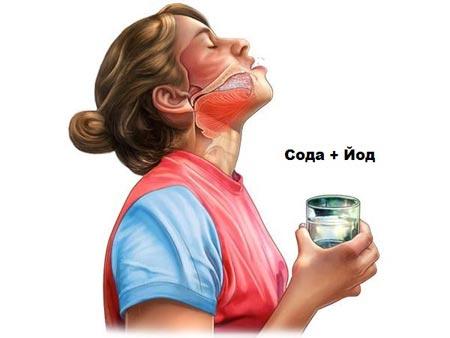 Полоскание горла содой и йодом