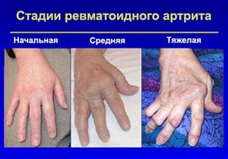 Стадии ревматоидного артрита пальцев рук