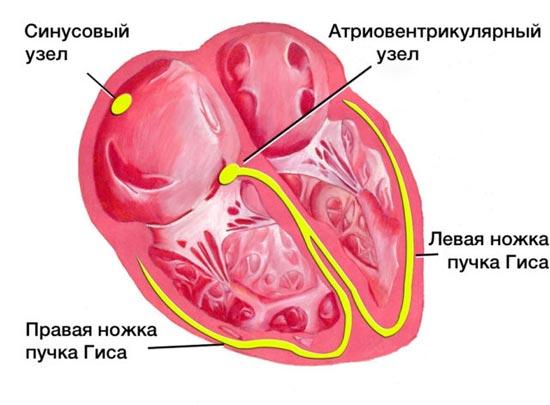 Sinusovaya aritmiya 3 e1493285356604 - Hartritmestoornissen naarmate vormen symptomen ontwikkelen diagnose behandeling gevolgen
