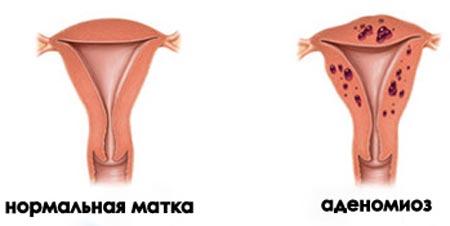 Нормальная матка и аденомиоз