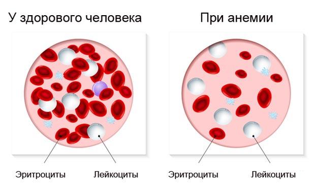 Анемия клетки крови