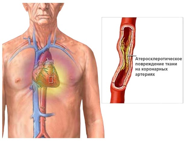 Локализация стенокардии