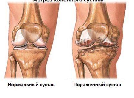 Артроз причины и симптомы разрушения суставов лечение и профилактика