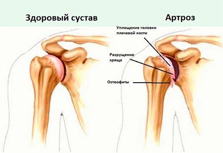 Разрушение хрящевой ткани суставов лечение локтевой сустав растяжение