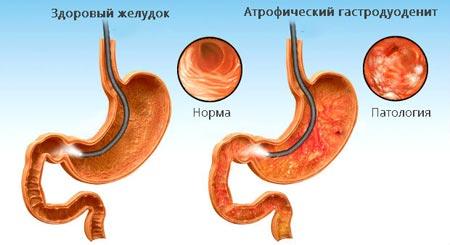 Атрофический гастродуоденит