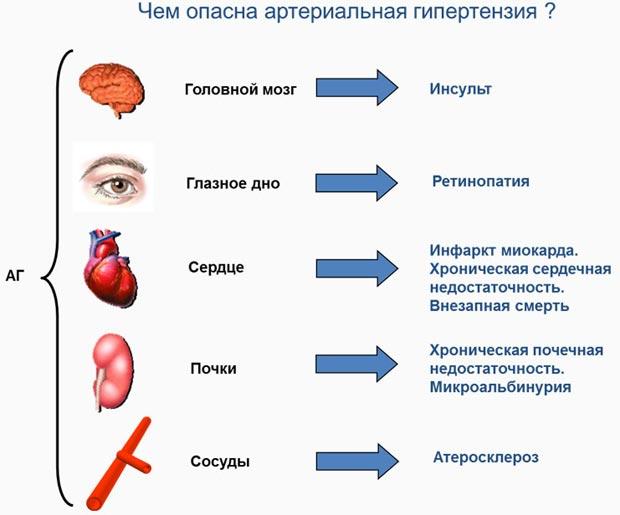 Артериальная гипертензия что это
