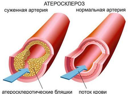Причины симптомы и лечение атеросклероза сосудов