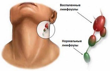 Дифтерия и лимфоузлы
