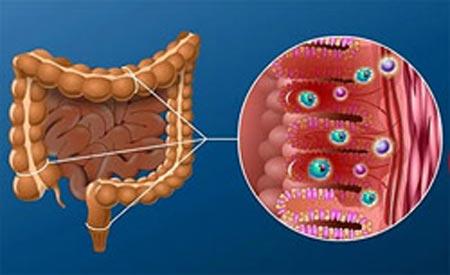 Хронический дисбактериоз