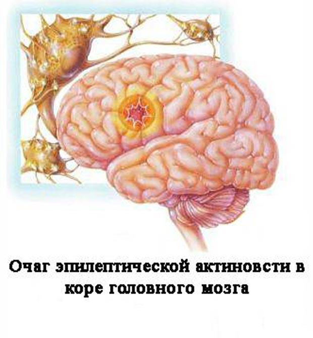 Очаг эпилептического припадка в коре головного мозга