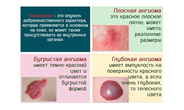 Что такое гемангиома и чем она опасна