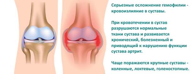 Осложнения гемофилии