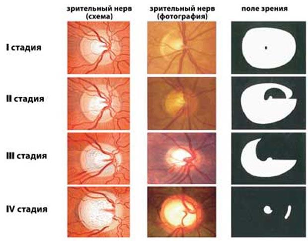 Степени глаукомы