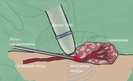 Лечение гемангиомы