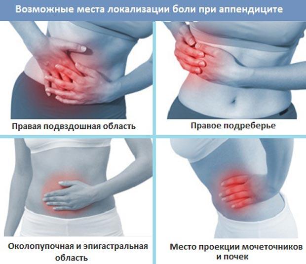 Места локализации боли при аппендиците