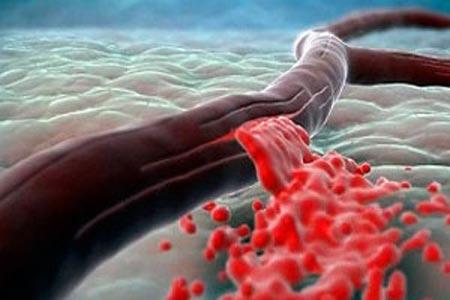 Острая постгеморрагическая анемия