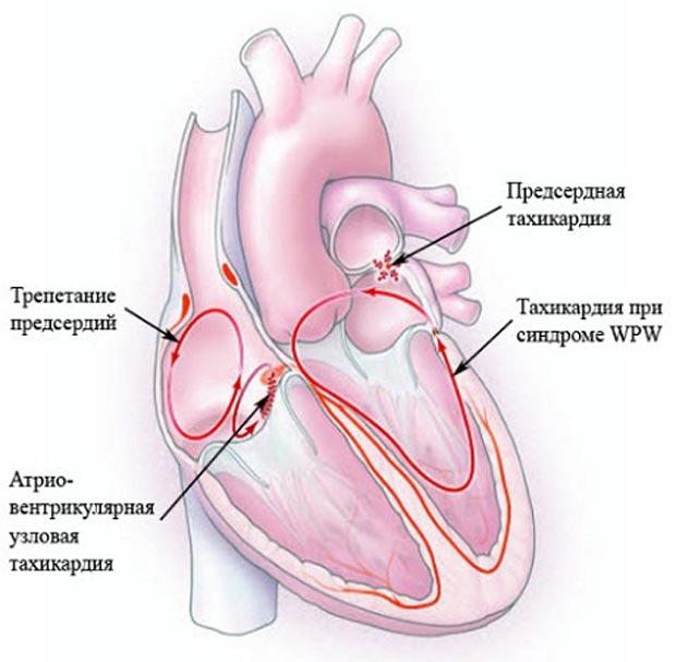 Желудочковая тахикардия