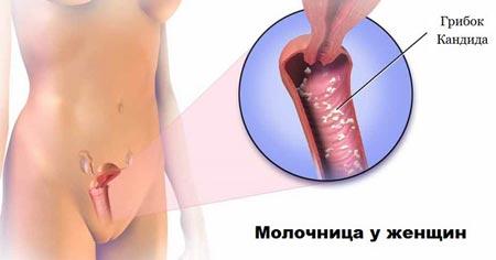Нужно ли исключить секс во время лечения молочницы