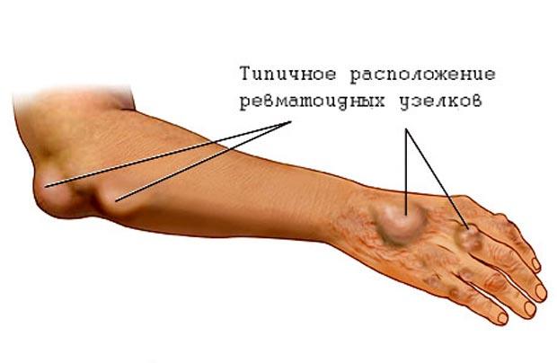 Ревматоидные узелки при ревматизме