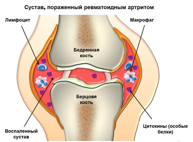Сустав, пораженный ревматоидным артритом
