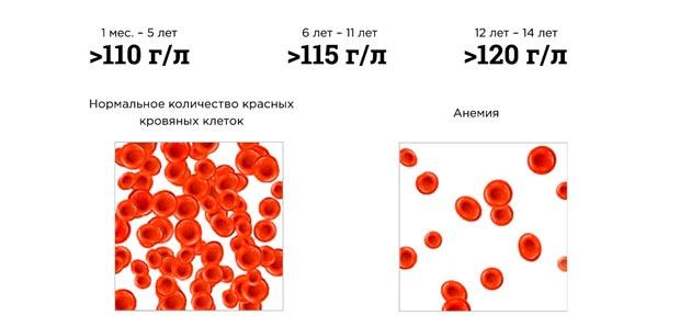 Концентрация гемоглобина