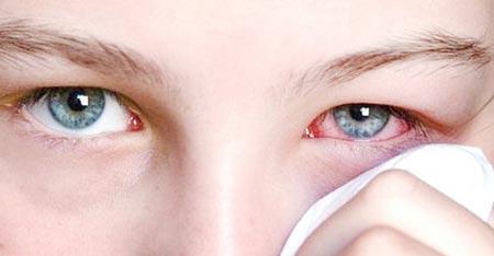 Дифтерия глаз
