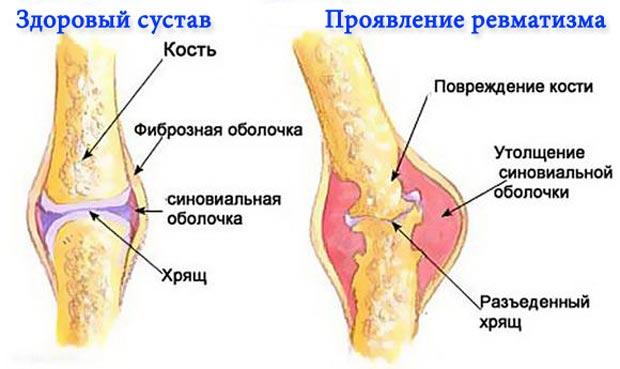 Здоровый сустав и проявление ревматизма