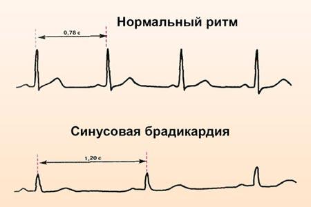 Синусоидальная брадикардия на ЭКГ
