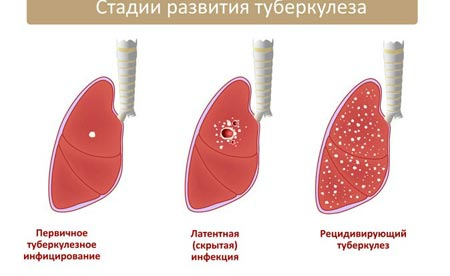 Стадии развития туберкулеза