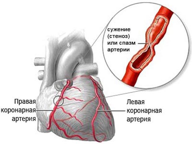 Правая и левая коронарные артерии