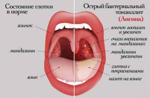 Острый бактериальный тонзиллит