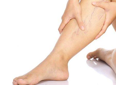 Варикозное расширение вен на ногах (варикоз): причины, симптомы и лечение врв