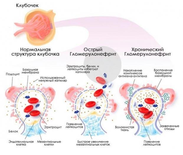 Виды гломерулонефрита