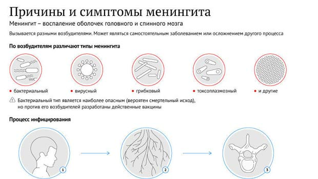 Причины менингита